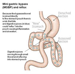 The Mini-Gastric Bypass www.clos.net/ The Mini Gastric Bypass (MGB) is a Short, Simple, Successful, Reversible Laparoscopic gastric bypass weight loss surgery
