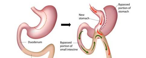 Mini gastric-bypass